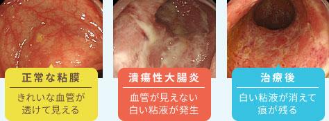ブログ メニュー 食事 切除 後 大腸 の ポリープ